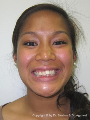 Brante had a gum surgery, tooth bonding and orthodontic treatment. She was ecstatic with the results.