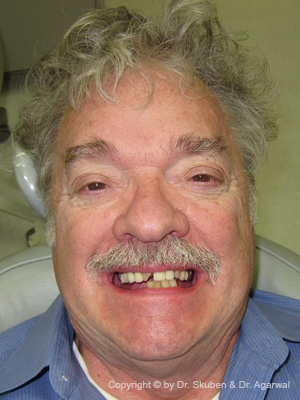 Charles had multiple implants done. He could finally chew and felt his teeth looked better than they used to when he was young.