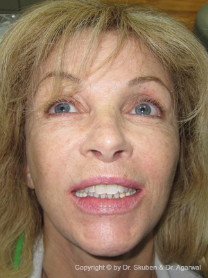 Silvia wanted a big smile to look young and beautiful. She got a full smile makeover with crowns and a dental implant.