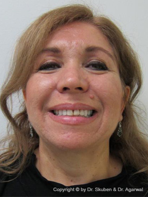 Martha had multiple fillings which were discolored. She wanted a smile makeover and loved her smile.